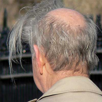worst_combover_4