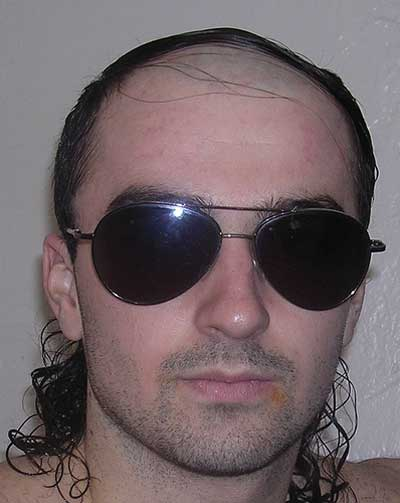 worst_combover_5