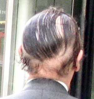 worst_combover_6