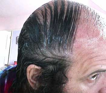 worst_combover_7